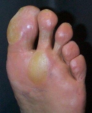 bunion callus